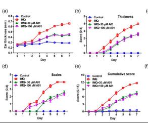 난치성 피부질환 건선에 '아녹타민1 억제' 치료효과 세계 최초 규명